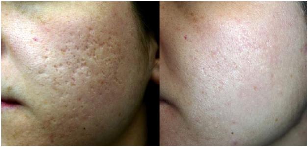 pimples-scar-reduction